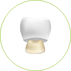 keramikkronen